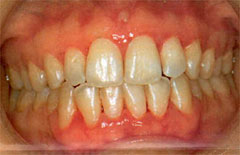 periodontitis y diabetes no inducidas por placa