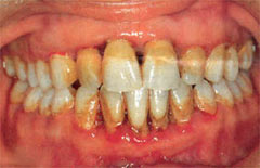 boca manchas blancas diabetes mellitus